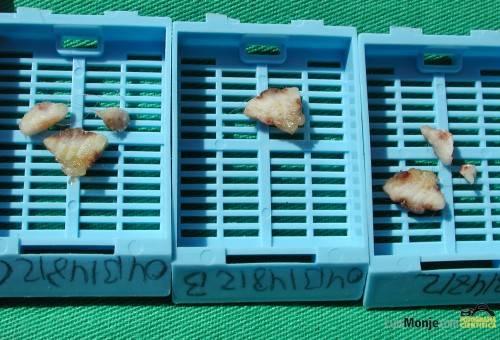 nevus seriado capsulas